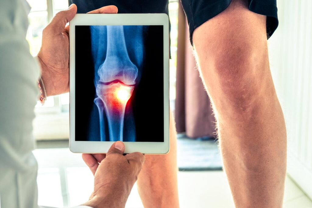 Wat is artrose en het proces van de ontwikkeling ervan?