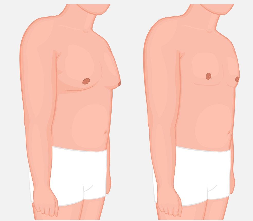 Gynaecomastie komt voor bij andere ziekten, vooral die met een genetische achtergrond.