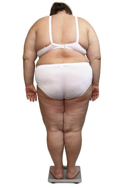 Obesitas maakt het dagelijks leven veel moeilijker: het leidt vaak tot een diepe depressie.