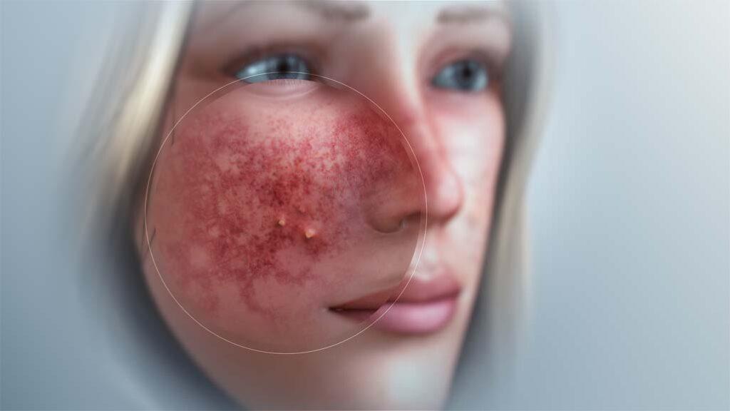 Er zijn veel verschillende soorten acne rosacea