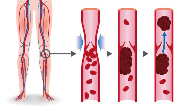 Er zijn verschillende soorten trombose - deze zijn afhankelijk van de plaats waar de trombose is gevormd.